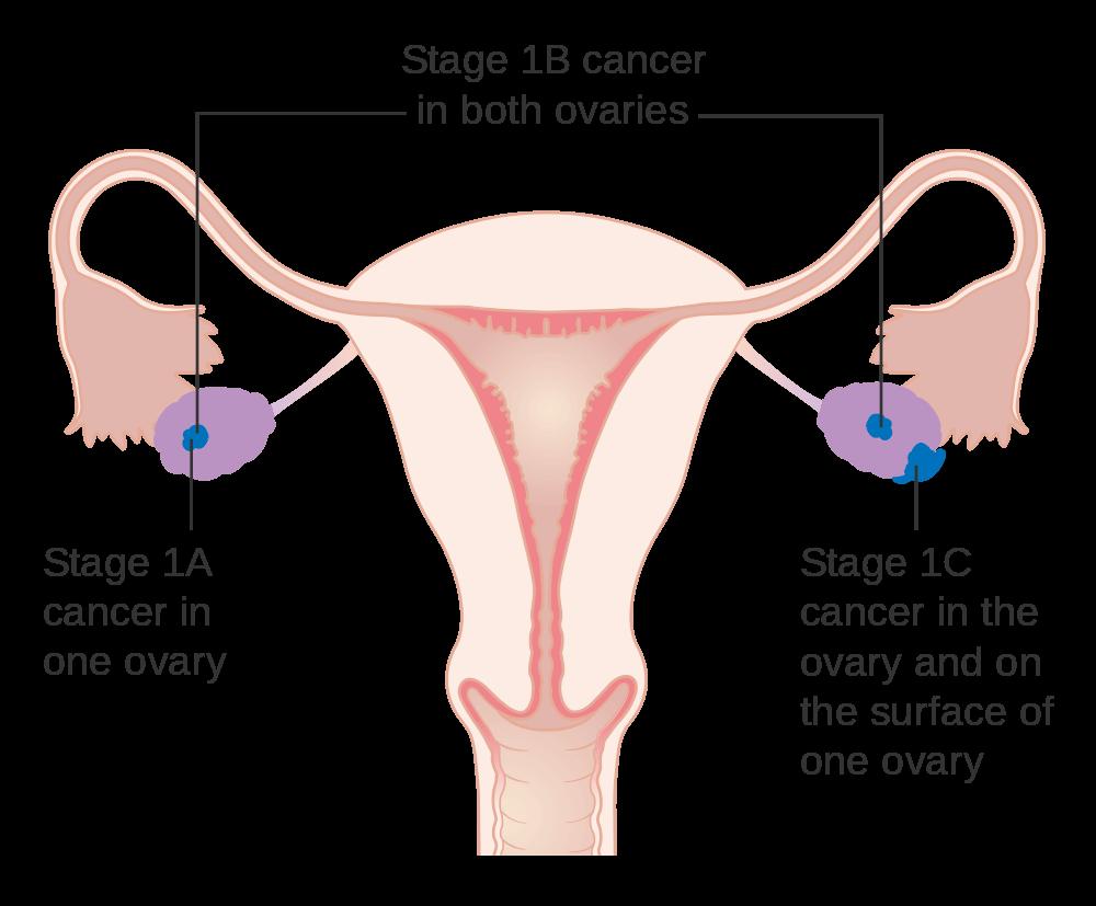 癌症掰掰-卵巢癌治療