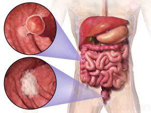 大腸癌飲食 直腸癌飲食 良好營養狀況的好處