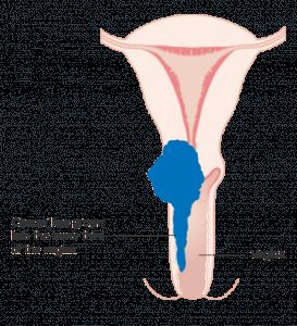 子宮頸癌檢查與診斷