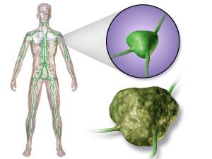 淋巴癌檢查 惡性淋巴瘤診斷