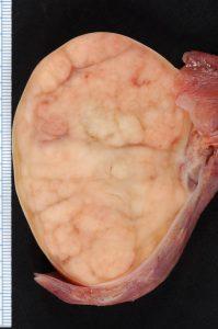 睪丸癌檢查 睪丸癌診斷