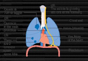肺癌檢查 肺癌診斷