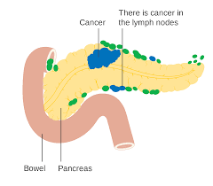 胰臟癌症狀