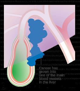 膽囊癌症狀