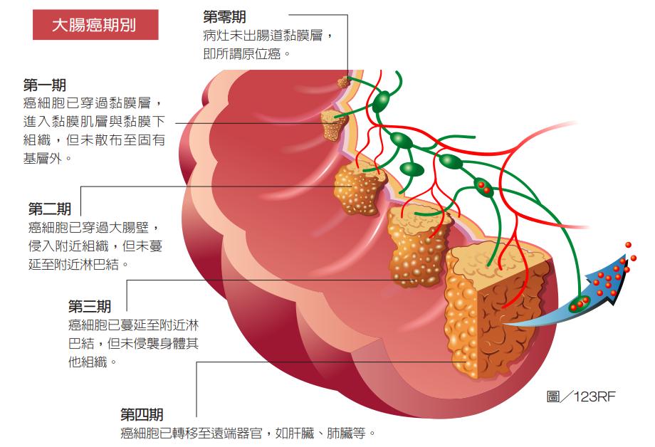 直腸癌採標靶真光刀定位放療 病情獲控制