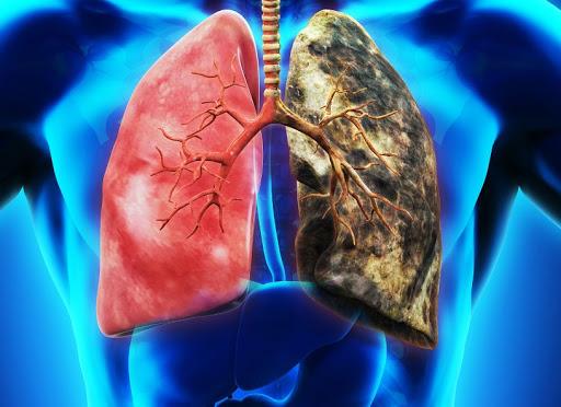 癌症 10大死因之首! 肺癌 年奪9千命